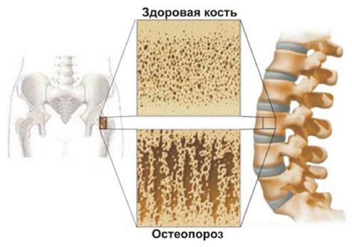 Остеохондроз лечить нсп